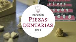 MONTAJE DIAGNSTICO 4/5    FASE 4: Preparacin de piezas dentarias para montaje diagnstico.